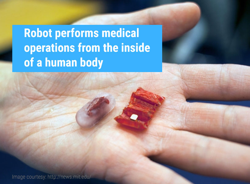 Robot performs medical operations from the inside of a human body
